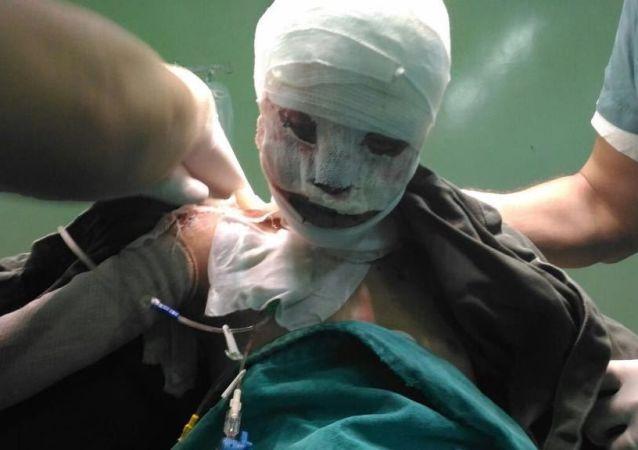 被燒傷的敘利亞女孩遭到更嚴重的媒體中傷