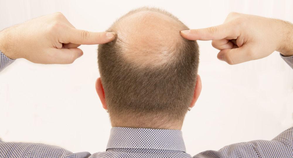 科学家们找到有助于防止脱发的物质