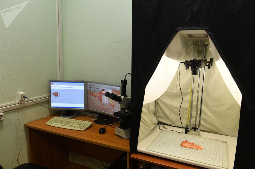 """""""Atlant""""智能系统帮助肿瘤学家研究病人的生物材料。该系统通过肿瘤和肿瘤样图像的数据库仔细分析生物材料。"""
