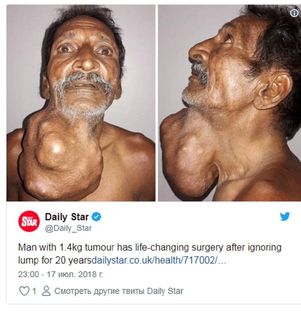 印度男子患肿瘤20年 长到头部大小才就医