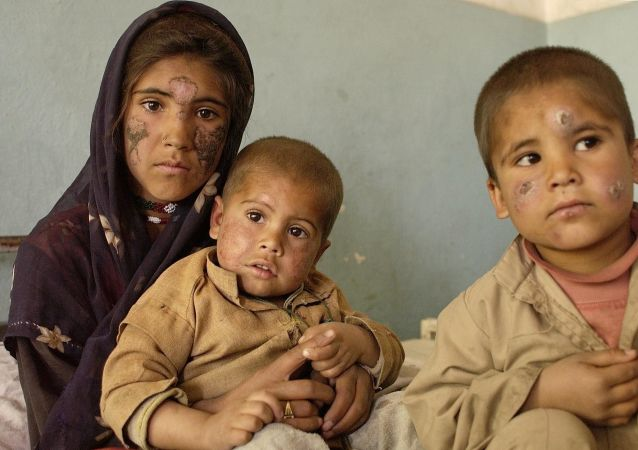 联合国儿童基金会:年底前在阿富汗处于饥饿边缘的儿童人数将达到60万