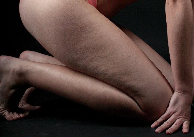雅芳因橘皮组织广告向广大女性道歉
