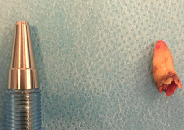 丹麥男子鼻內長出牙齒