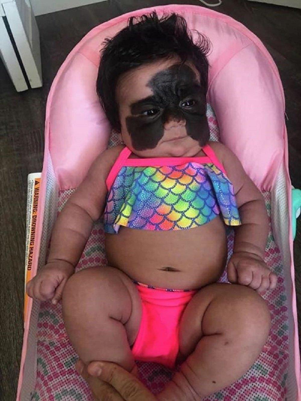 一名脸上带黑斑婴儿的母亲遭网络暴力迫害
