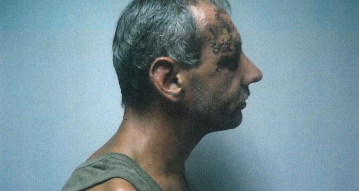 在新闻发布会上乌克兰安全局前雇员普罗佐罗夫出示了监狱九名囚犯的照片--他们年龄各不相同,从穿着卡其色T恤(也许正是因为这个而被抓)的少年到两位老人。他们身上都有被殴打的痕迹。