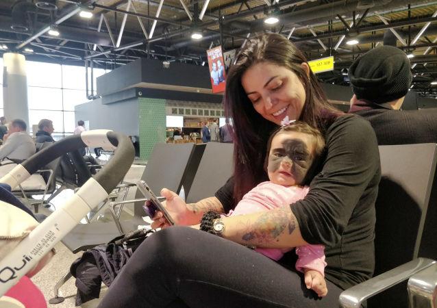 臉上長黑斑胎記的美國女嬰已在俄羅斯做手術